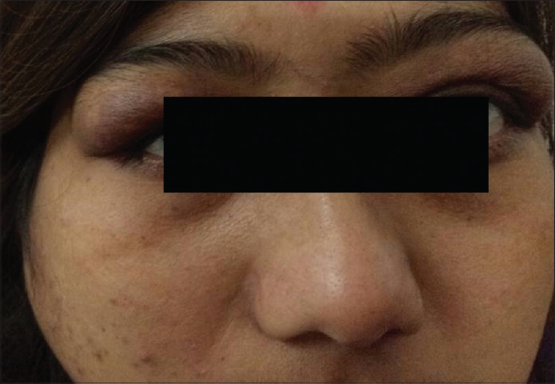 Figure 1: Showing bilateral swelling of the upper lid with blepharoptosis
