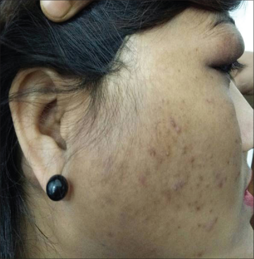 Figure 2: Showing diffuse swelling of right cheek and parotid region