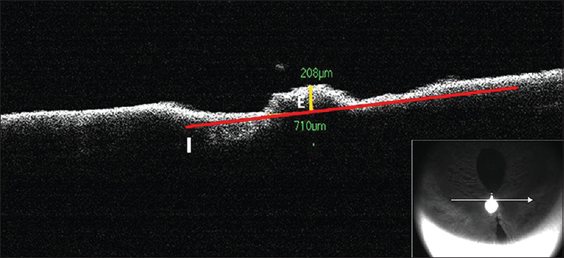 Figure 1: Spectral domain optical coherence tomography analysis of iris and knot complex in cross section. I: Line along the iris plane. E: Highest Elevation of the iris- knot complex perpendicular to iris plane
