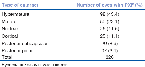 Table 4: Type of cataract and number of eyes with pseudoexfoliation