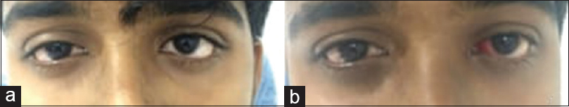 Figure 1: (a) Preoperative picture showing small left convergent squint.(b) Postoperative picture after modified Faden operation