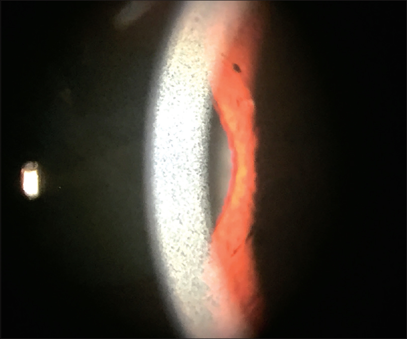 Ocular argyrosis: A case with silver deposits in cornea and