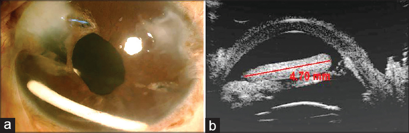Figure 1: Case 1 (a) Clinical picture of migrated Ozurdex implant in the anterior chamber with glued IOL <i>in situ</i> and iris defect at 10 o'clock. (b) Ultrasound biomicroscopy picture showing well-centered glued IOL and the migrated implant