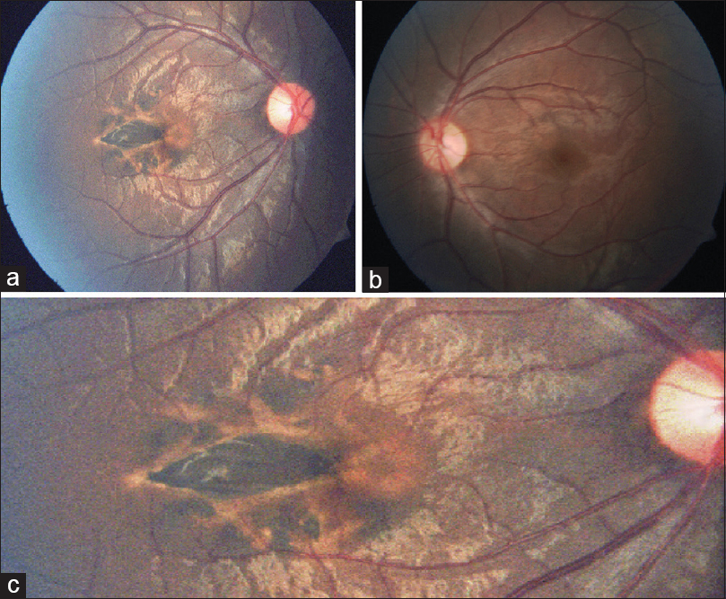 Figure 1: (a): Right eye fundus showing flat, globally hyperpigmented, and fusiform lesion with well-defined margins located temporal to the fovea. (b) Normal fundus left eye. (c) Magnified picture showing torpedo-like lesion