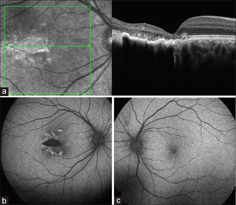 Figure 2: (a) Thinning of outer retinal layers with loss of ellipsoid zone with few focal cavitations. (b) Hypo autofluorescent torperdo lesion with patchy hyper autofluorescent areas around it. (c) Normal autofluoroscence left eye