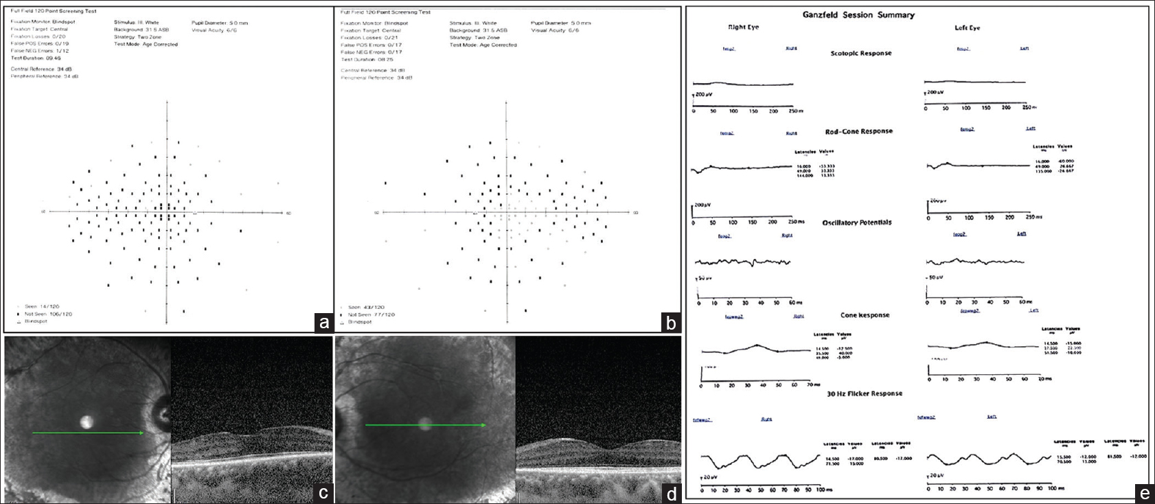 Figure 2: (a and b) Full.field analysis OD and OS, respectively, showing constriction of the peripheral field. (c and d) OCT OD and OS, respectively, showing retinal thinning. (e) ERG OU showing reduced photopic and scotopic responses