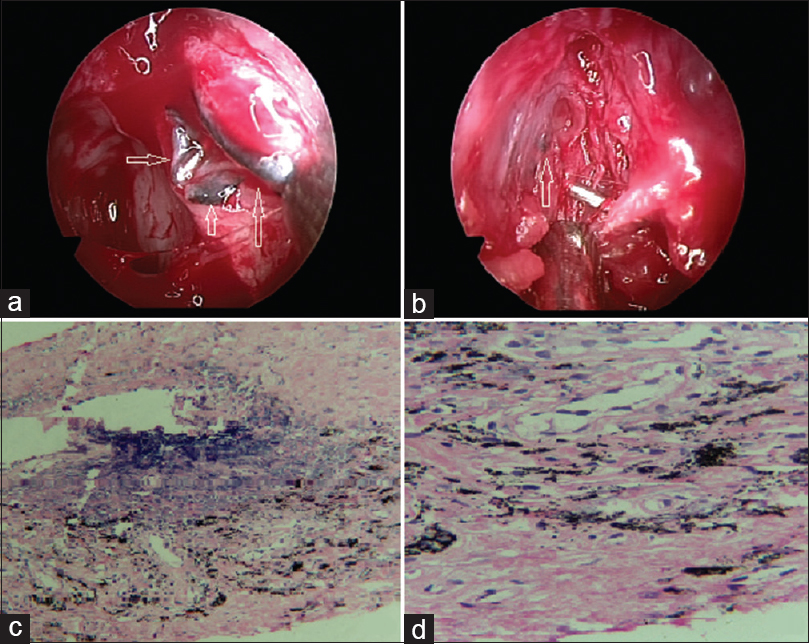 Figure 1: (a) Endoscopic view of the left nasal cavity showing thick black pigmented patches in the lumen of the sac around the common canaliculus with probe <i>in situ</i>. (b) Endoscopic view of the right nasal cavity of the same patient showing diffuse black pigmentation of the lacrimal sac lumen with probe in situ.(c and d) Microphotograph of the same patient showing abundant pigmentation into the cytoplasm of the fibrous tissue and stroma