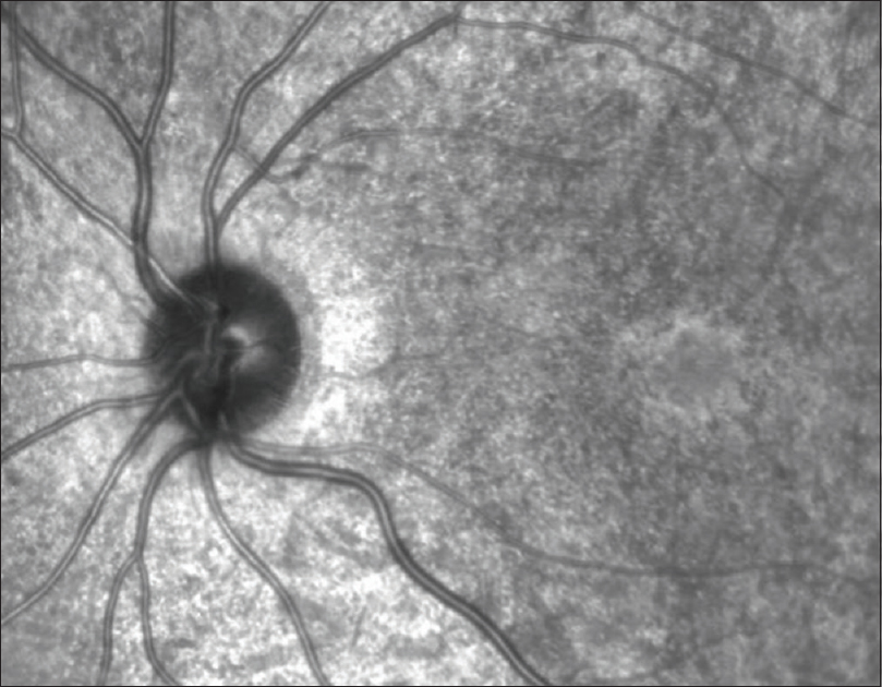Figure 2: Fundus autofluorescence of the left eye with a hyper-autofluorescent parafoveal ring