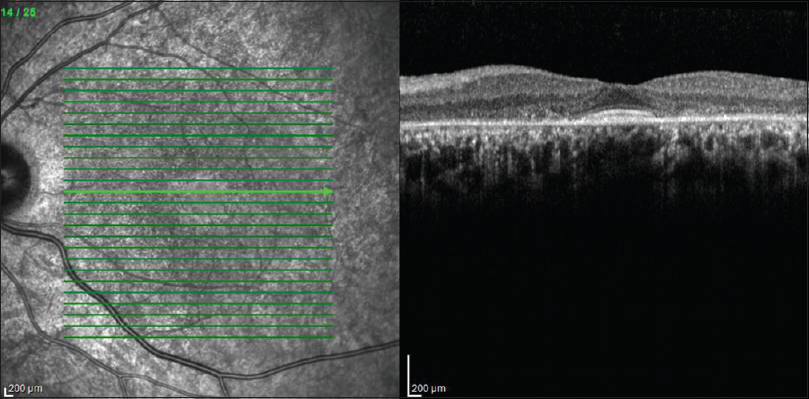 Figure 3: Spectral-domain optical coherence tomography showing the flying saucer sign secondary to the perifoveal thinning