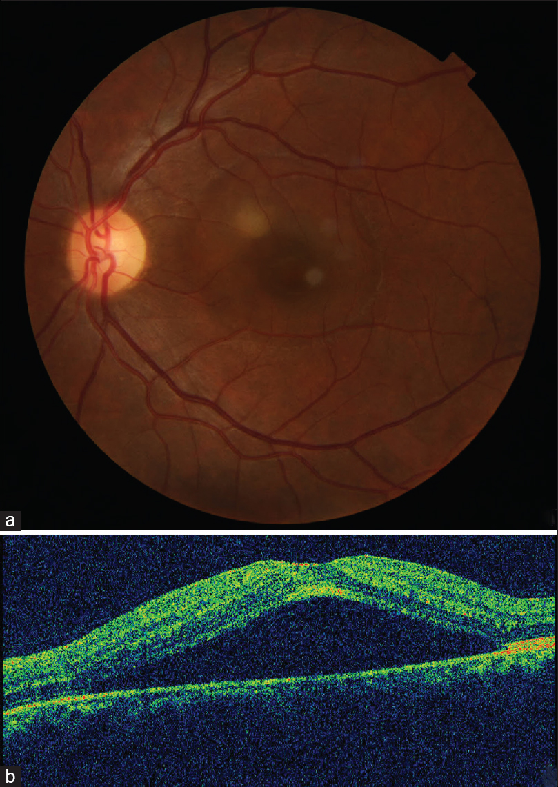 Figure 1: (a and b) Initial fundus picture and corresponding serous elevation (641 μ) on OCT
