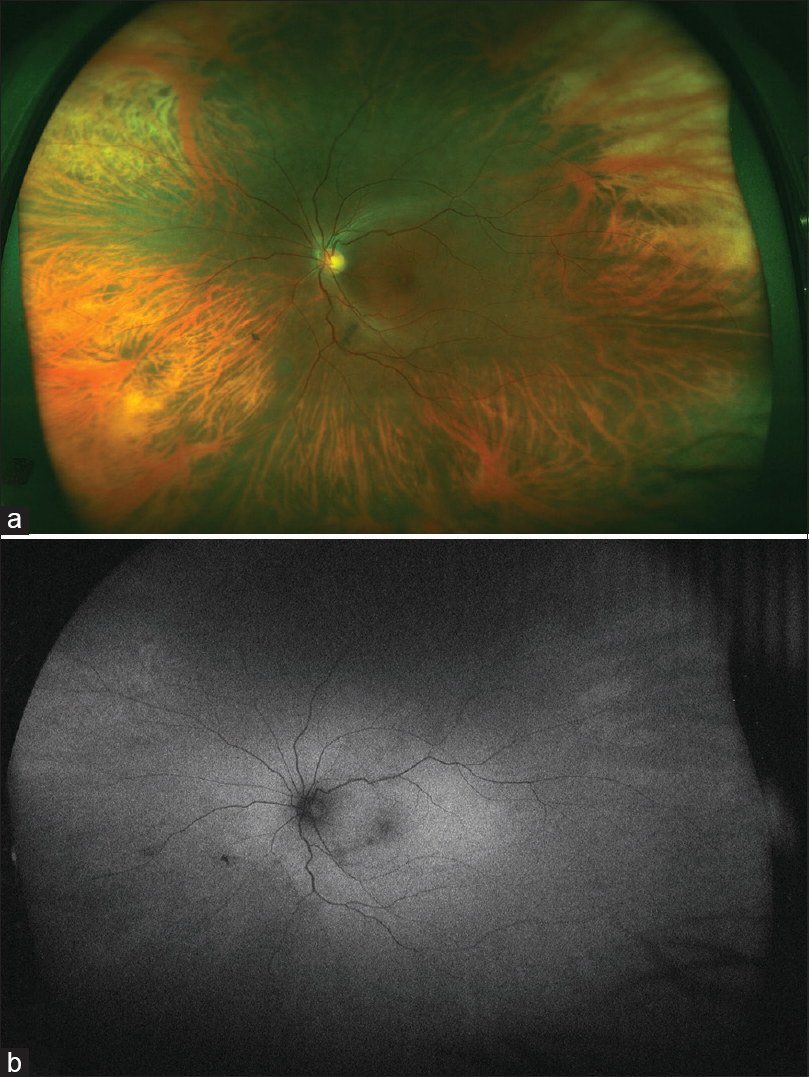 Figure 2: (a) Ultrawide field fundus image of the fellow eye showing marked peripheral fundus tessellation with visibility of the outer choroidal vessels and comparatively normal looking posterior pole with a good foveal reflex. (b) Ultrawide field fundus autofluorescence image of the same eye with a dull peripheral autofluorescence