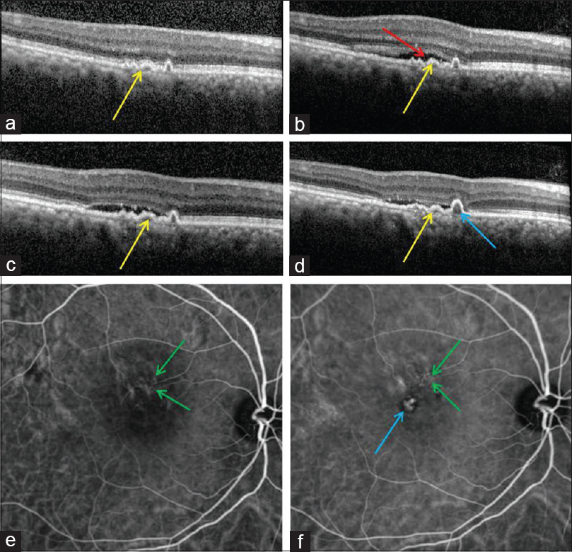Figure 1: SD-OCT showing presence of shallow irregular pigment epithelial detachment (double-layer-sign; [DLS]; yellow arrow in a - d); a) at baseline without fluid (pachychoroid pigment epitheliopathy), b) with appearance of serous macular detachment (red arrow; 1b) after 1 year (central serous chorioretinopathy), (c) Increase in DLS with corresponding ICGA (e) demonstrating abnormal vascular network (green arrow) confirming pachychoroid neovasculopathy which progresses to polypoidal choroidal vasculopathy [pigment epithelial detachment on SD-OCT (blue arrow; d); nodular hypercyanescence [polyp; blue arrow; f) and abnormal vascular network (green arrow; f) on ICGA]
