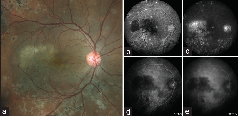 Figure 3: Color fundus photograph (a) and early (b and d) and late-phase (c and e) fundus fluorescein angiography and indocyanine green angiography pictures of a 32-year-old male with serpiginous-like choroiditis, who presented with reactivation of choroiditis in fovea. Active choroiditis appears as hypofluorescence with fuzzy, irregular borders in early phase (b), followed by profuse leakage of the dye leading to hyperfluorescence in late phase of fundus fluorescein angiography (c). Active lesions in indocyanine green angiography show blockage of the dye beginning from the early phase (d) to the late phase (e)