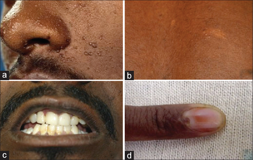 Primary ocular presentation of tuberous sclerosis – A case