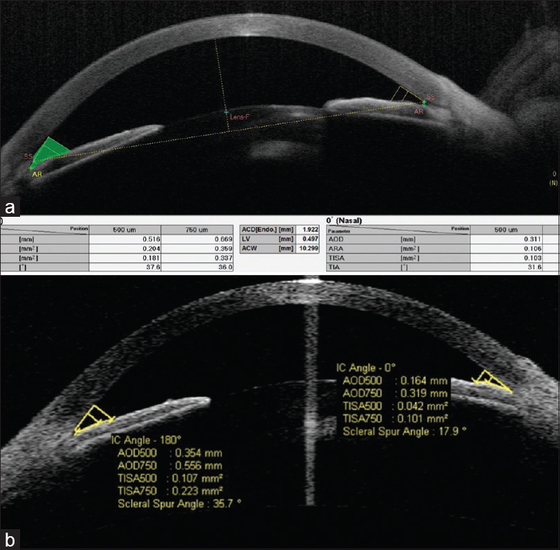 Figure 1: (a and b). ASOCT picture of a case of PACG, on Casia and Visante, showing angle parameters in nasal and temporal angles