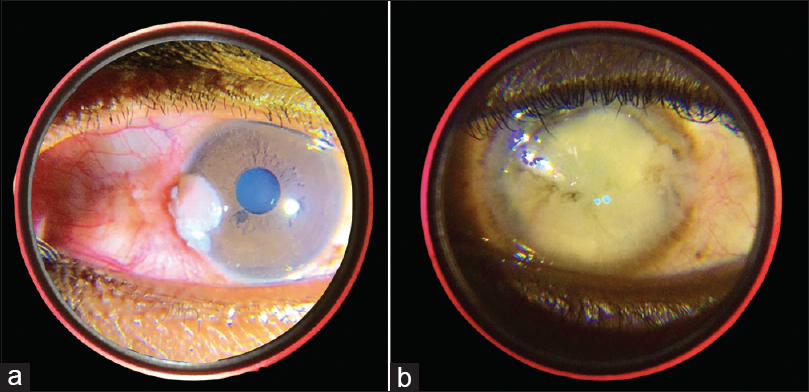 Figure 4: Anterior segment images take from The T3 Retcam. (a) Ocular surface squamous neoplasia, (b) Corneal opacity