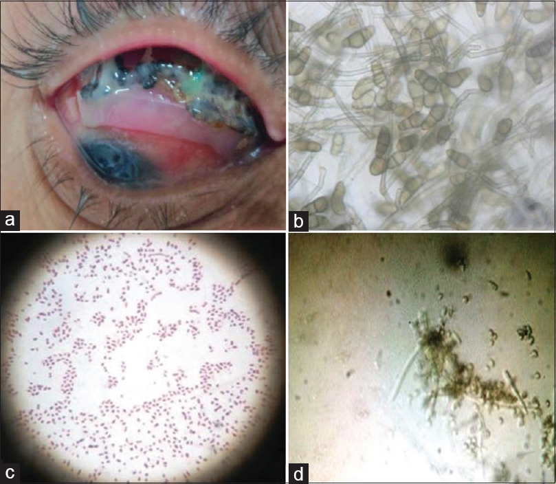 Figure 1: A 45-year-old male presented with redness, discharge, foreign body sensation, and an exposed infected buckle infected with black deposits (a), which on microbiological examination revealed <i>Curvularia</i> species (b); other unusual isolates seen in our series include <i>Serratia</i> species (c) and <i>Gliocladium</i> species (d)