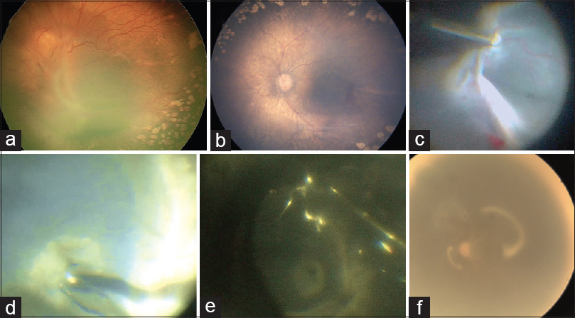 Macular hole following successful stage 4B/stage 5 retinopathy of