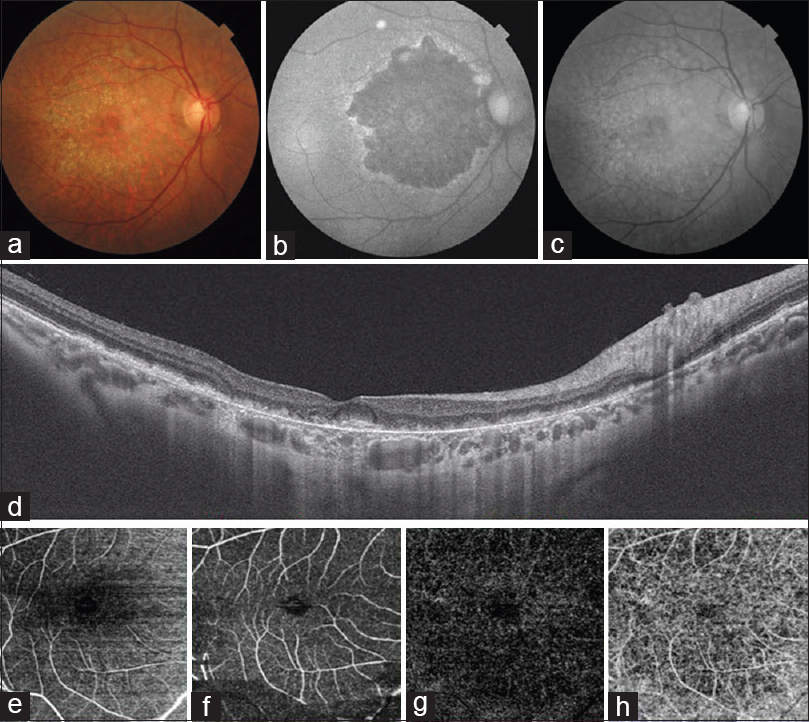 Figure 1: Color fundus photograph showed granular pigmentation and subretinal yellow-white deposits in right eye [Figure 1]a. Autofluorescence showed marked hypoautofluorescence corresponding to the lesion with few areas of speckled hyperautofluoresence at the fovea [Figure 1]b. Red free photo demonstrated a giraffe-like pattern in the rest of the posterior pole [Figure 1]c. SS-OCT showed disorganization of the outer retinal layers with disruption of choriocapillaris [Figure 1]d. OCTA showed signal void areas in the choriocapillaris [Figure 1]e,[Figure 1]f,[Figure 1]g,[Figure 1]h