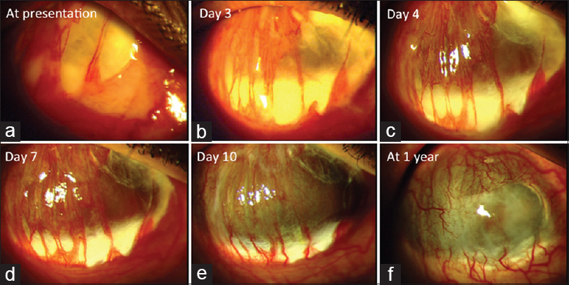 Figure 2: Series of slit-lamp images showing resolution of scleral abscess. (a) Image at presentation showing large superior scleral abscess. (b, c) Image at days 3 and 4 showing clearing of exudates with extreme scleral thinning and exposure of uveal tissue as scleral abscess started responding. (d) Image at day 7 showing episcleral vessels bridging the thinned out area. (e) Image at day 10 showing thin fibrous sheet covering the exposed uveal tissue with bridging episcleral vessels. (f) Image at 1 year showing large ciliary staphyloma