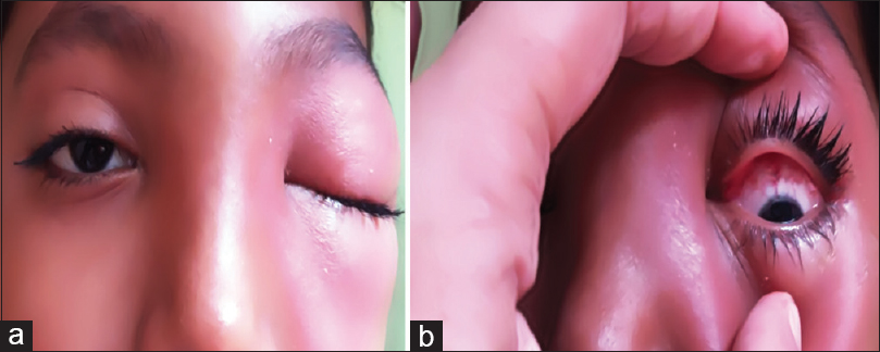 Figure 1: External photograph showing the swelling of the lids and fullness of the left orbit (a) and left superior conjunctival congestion on forced retraction of the lids (b)