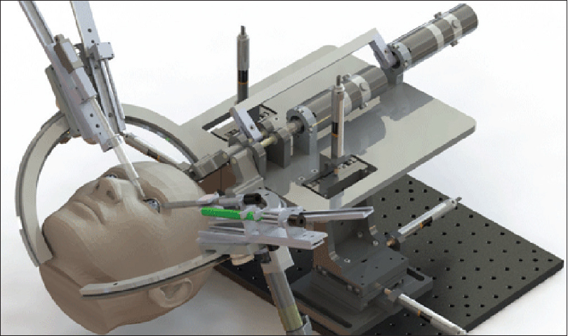 Figure 3: Intraocular Robotic Interventional Surgical System. (Figure courtesy- Mechatronics)