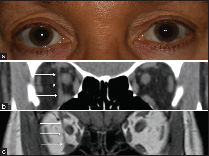 Figure 1: External photograph revealed unilateral enophthalmos OD in a Caucasian female (a). CT scan showed a density connecting the inferior and superior recti muscles (b). MRI confirmed a muscular band (c)