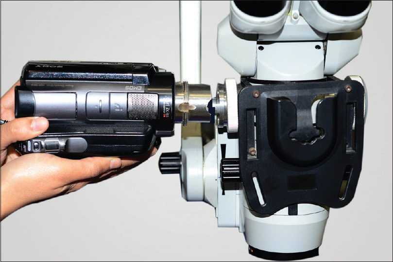 Figure 1: Operating microscope beam-splitter tube mounting of a video camera using a custom-made adapter. The front of the microscope shows an adapter to paraxially mount a 4K or a 3D camera