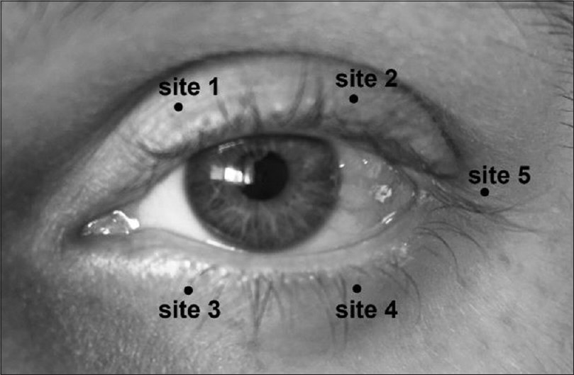 Figure 1: Injection sites of botulinum toxin injection. Sites 1 and 2: inner and outer thirds of the upper lid; sites 3 and 4: inner and outer thirds of the lower lid; site 5: temporal canthus