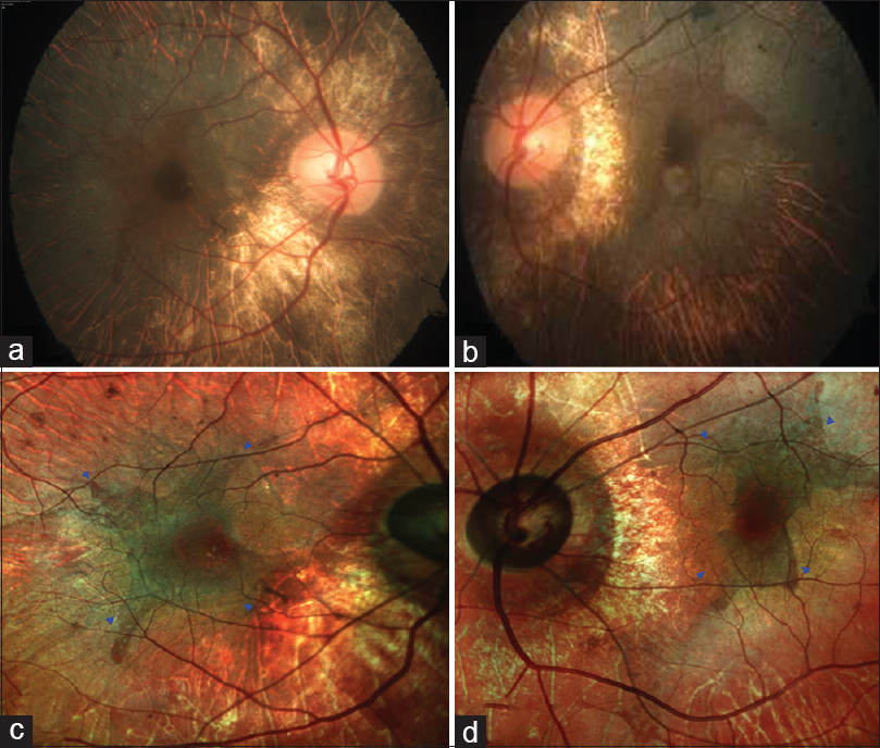 Figure 1: Color fundus photograph (CFP) (a and b) showed bilateral chorioretinal atrophy (CRA) and areas of retinal pigment epithelium (RPE) disruption with sparing of the central macula. Multicolor imaging (c and d) highlighted the residual RPE tissue at macula (blue arrow heads) and surrounding CRA much better than CFP
