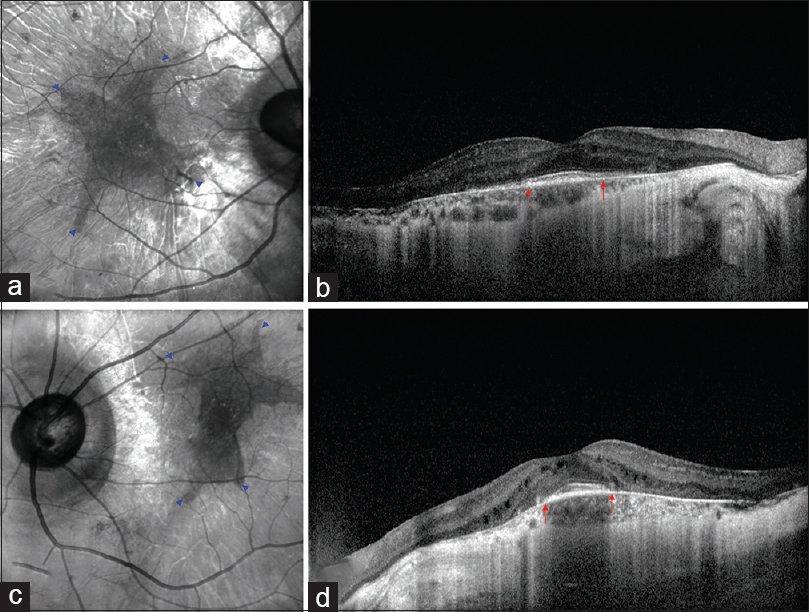 Figure 3: Area of residual RPE tissue (blue arrow heads) was well visualized in infrared reflectance images (IR) (a and c). Spectral domain optical coherence tomography showed retinal thinning and choriocapillary atrophy sparing central macula (red arrows) (b and d)