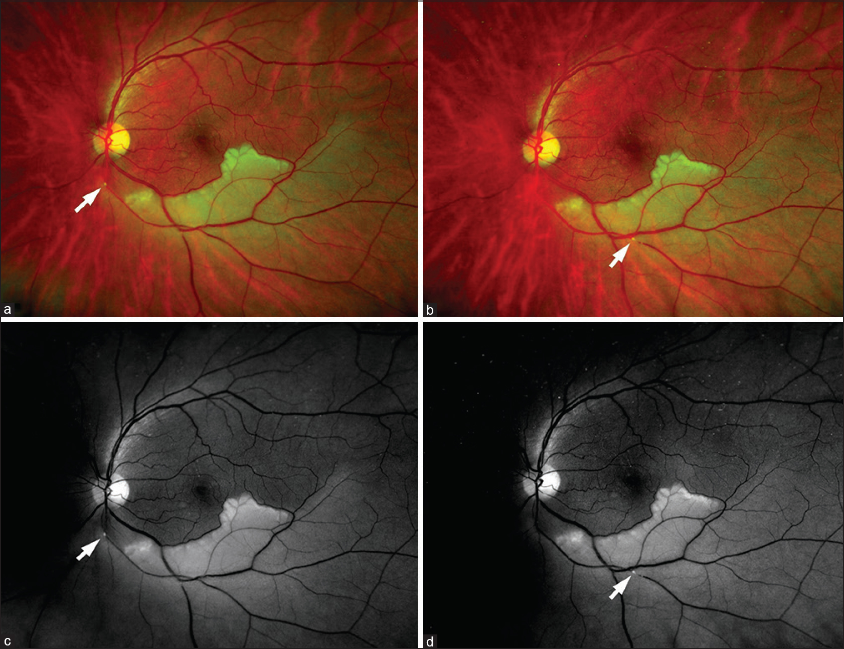 Figure 1: Ultra-wide field retinal image of the left eye with inferior branch retinal artery occlusion from an embolus. The embolus movement from a to b arrow and red-free photograph (Panel c and d) greatly accentuates the retinal whitening and embolus