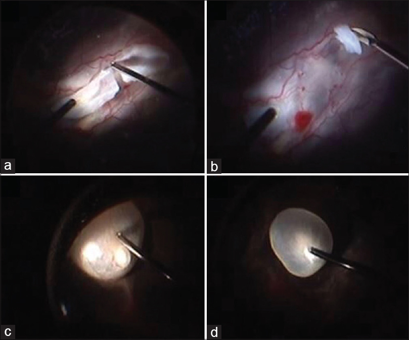 Figure 2: Still images of right eye captured intraoperative during pars plana vitrectomy. (a) Segmentation of the fibrovascular epiretinal membrane temporal to the disc using a 25-gauge cutter. (b) The residual membrane was dissected using intraocular scissors. (c) Subretinal cyst located subretinally in the inferonasal quadrant with the cyst protruding at the center. (d) The cyst was gently engaged with the vitrectomy cutter using minimal vacuum. The cyst was later aspirated into the cutter