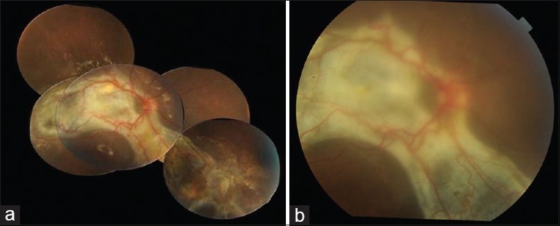 Figure 3: (a) Color fundus montage of right eye 3 months post-surgery showing attached retina with extensive subretinal fibrosis. (b) Color fundus photo 1 month post silicone oil removal showing attached retina with subretinal fibrosis involving macula. Media was hazy due to posterior subcapsular cataract