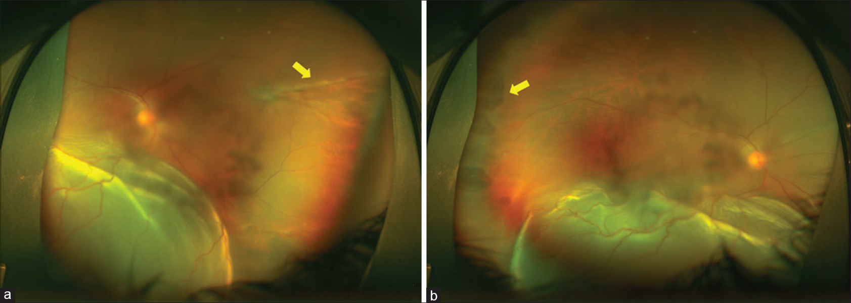 Figure 1: (a) Ultra-wide field fundus image of the right eye showing rhegmatogenous retinal detachment with the peripheral coastline like degeneration on the nasal side (yellow arrow). The degeneration had well-defined margins with hypopigmented border. (b) Temporal periphery of the same eye showing multiple patchy isolated degenerations simulating oral bays
