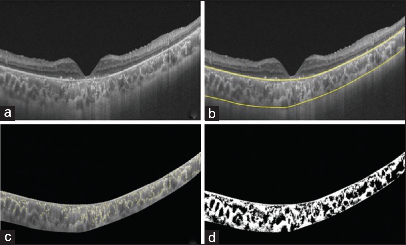 Figure 1: Swept-source optical coherence tomography macula scan of a subject (16-year-old male; right eye with visual acuity 20/400) with retinitis pigmentosa (a); segmentation of choroid using proprietary software (b); automated detection of choroidal hyper-reflective foci (319, yellow dots) using circle Hough transformation (c); delineation of stromal or luminal components to determine choroidal vascularity index (0.45) (d)