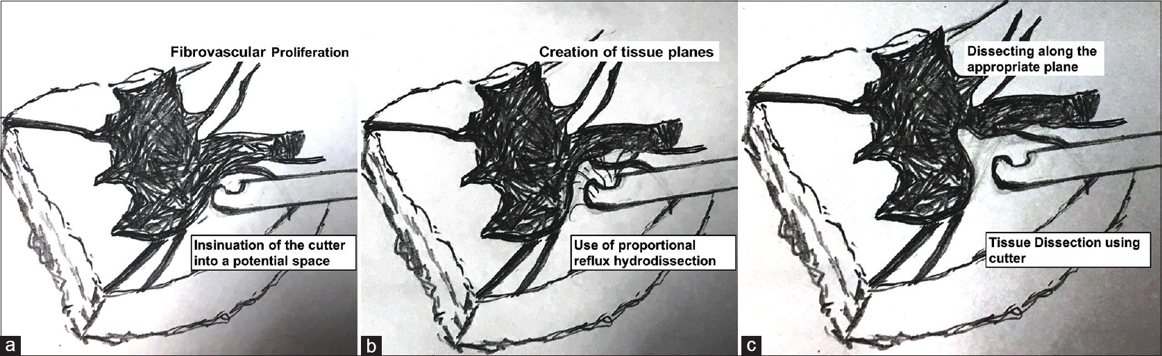 Figure 2: Line diagram explaining the technique of fibrovascular tissue dissection. (a) The initial frame shows a cutter which is inserted into a potential space in the fibrovascular tissue. Using proportional reflux (b), the tissue separation is increased. (c) Finally, the cutter is used to dissect the tissue in the potential space created by reflux