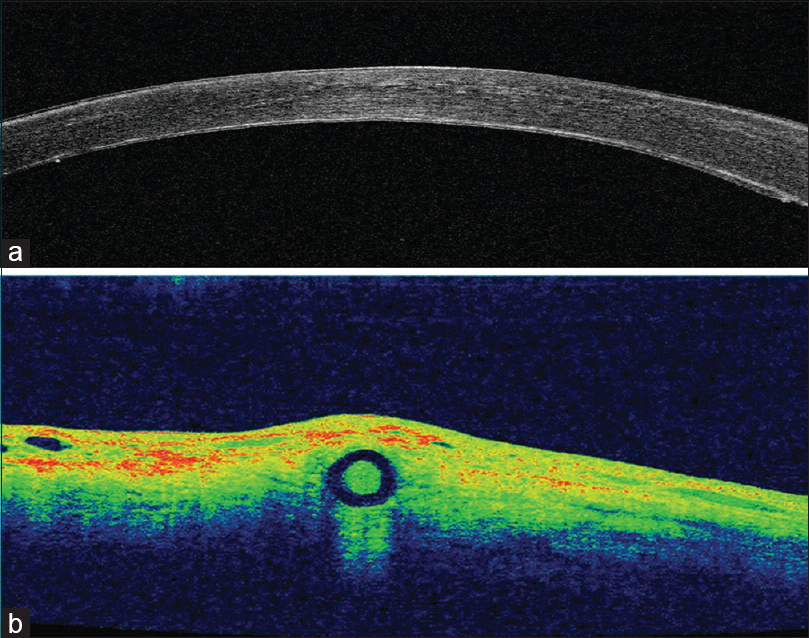 Figure 3: (a) Anterior segment optical coherence tomography (ASOCT) done post operatively, showed a well-apposed endothelial disc. (b) The ASOCT done shows positioning of the haptics flanges within the sclera post operatively