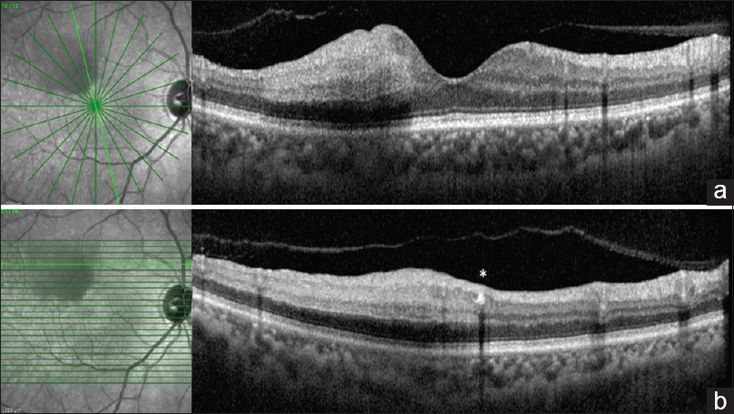 Figure 2: Spectral domain optical coherence tomography scan (a and b) showing segmental hyper reflectivity of the inner retinal layers with the arterial plaque (*)