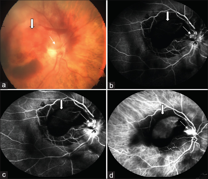 Figure 1: Colour fundus photograph (a) of right eye showing preretinal hemorrhage over the macula (block arrow) and the superior part of optic disc (line arrow). Fundus fluorescein angiography in early venous phase (b) and in late venous phase (c) showing blocked fluorescence over the macula (block arrow) with a small area of hyperfluorescene on the supero-temporal part of disc (line arrow) which increased in intensity over time. Indocyanine green angiography (d) showing blocked fluorescence over the macula (block arrow) and a well-defined area of hypercyanescence over the superior part of disc (line arrow)