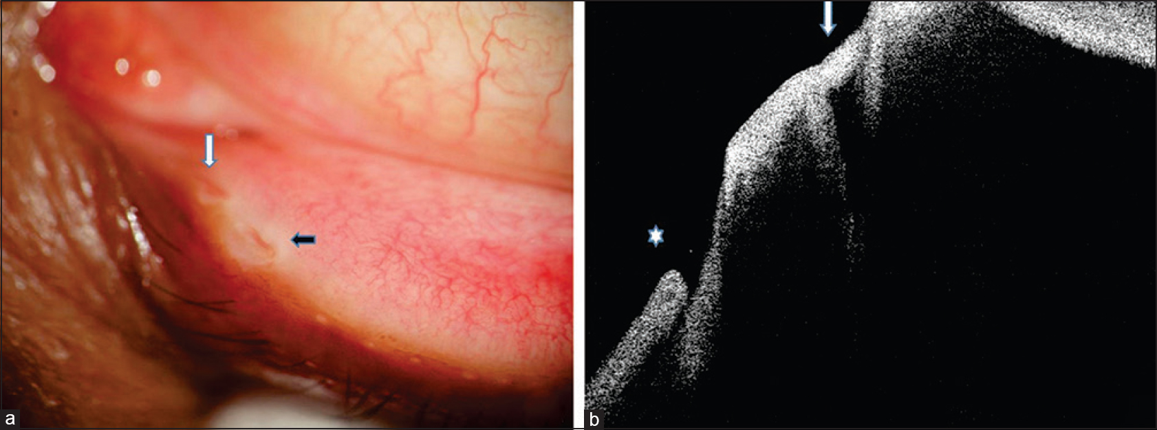 Figure 1: (a) Slit-lamp photography of supernumerary puncta of left eye lower lid, normal healthy puncta [black solid arrow], supernumerary puncta [solid white arrow]. (b) Cross-sectional image of both puncta obtained by AS-OCT, the deep funnel shaped hyporeflective spaces [solid white arrow] is normal healthy puncta. The hyperreflective epithelium of lid margin is continuous in both wall but abruptly thinned out at the margin of opening at temporal wall though nasal wall epithelium maintain its thickness throughout whole vertical depth. The shallow creeping edged tissue gap buried in the lid margin defines supernumerary puncta [asterix]. Here, lid margin epithelium is discontinuous in both the wall
