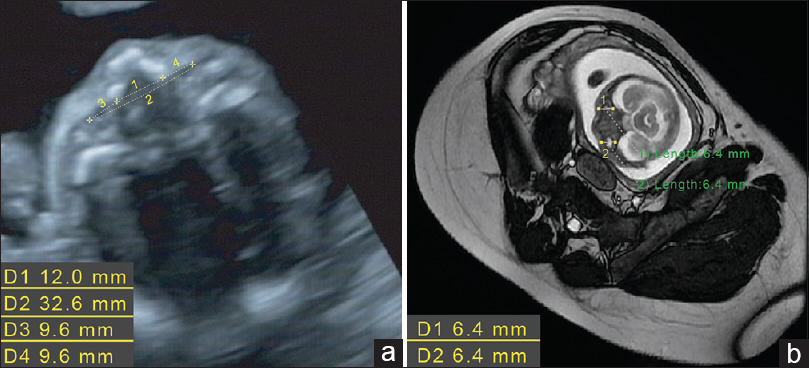 Figure 1: Prenatal ultrasonography (US) imaging of the first fetus. (a) Abdominal US: the inner canthal distance (D1) is long and the outer canthal distance (D2) is normal. The orbital margin diameters (D3 and D4) are small. (b) Abdominal magnetic resonance imaging: anterior–posterior ocular diameters (D1 and D2) are small