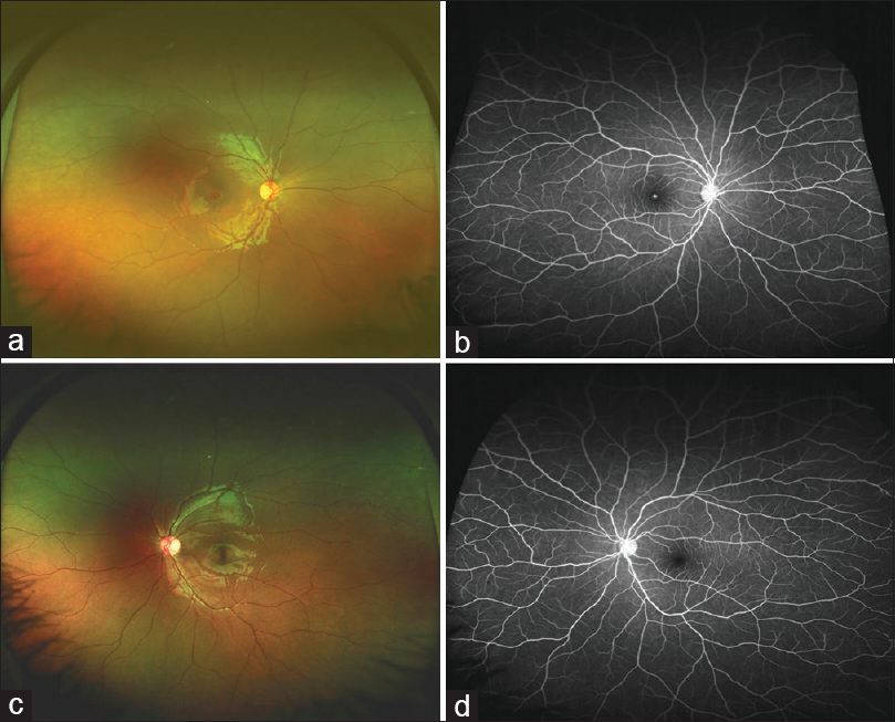 Figure 2: Ultra-wide field fundus image of OD showing no peripheral lesion (a). Ultra-wide field fluorescein angiography showing central hyperfluorescence (window defect) corresponding to the macular hole in OD (b). Ultra-Wide field fundus image (c) and Fluorescein angiography of OS (d) was unremarkable
