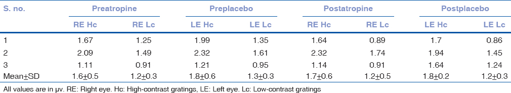 Table 1: Magnitude of right eye and left eye preatropine and postatropine with high-contrast and low-contrast gratings