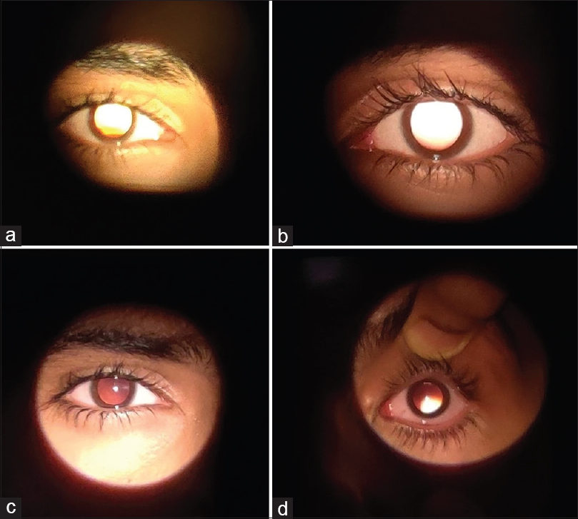 Figure 1: Comparison of Bruckner's test with direct (a) right eye, (b) left eye vs indirect ophthalmoscope (c) right eye, (d) left eye in a 22-year-old male who is emmetropic in the right eye and +4D hyperopic in the left eye. This clearly demonstrates indirect ophthalmoscope being superior
