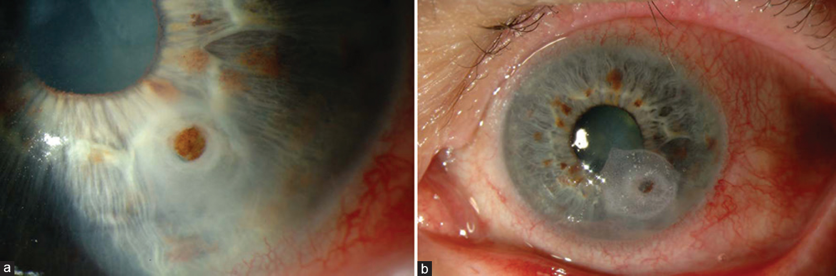 Figure 1: (a) Small corneal perforation prior to the application of glue (b) Corneal perforation sealed using cyanoacrylate glue