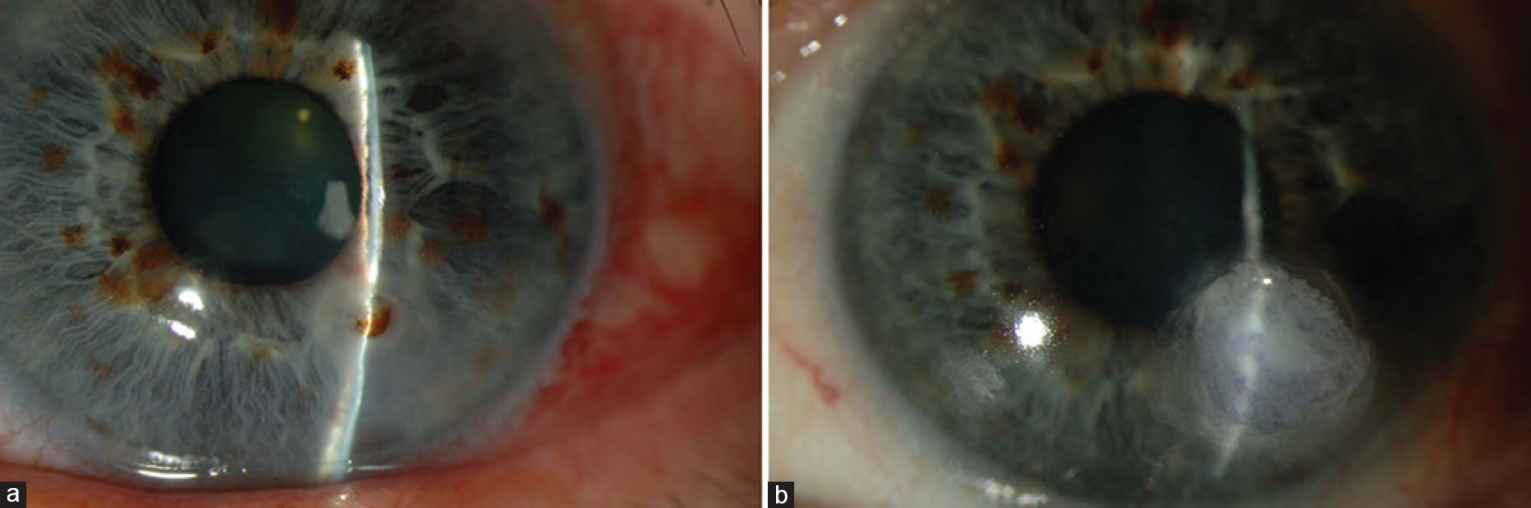 Figure 2: (a) Corneal perforation prior to application of Tenon's patch graft (b) Corneal perforation successfully sealed using a Tenon's patch graft, secured using glue