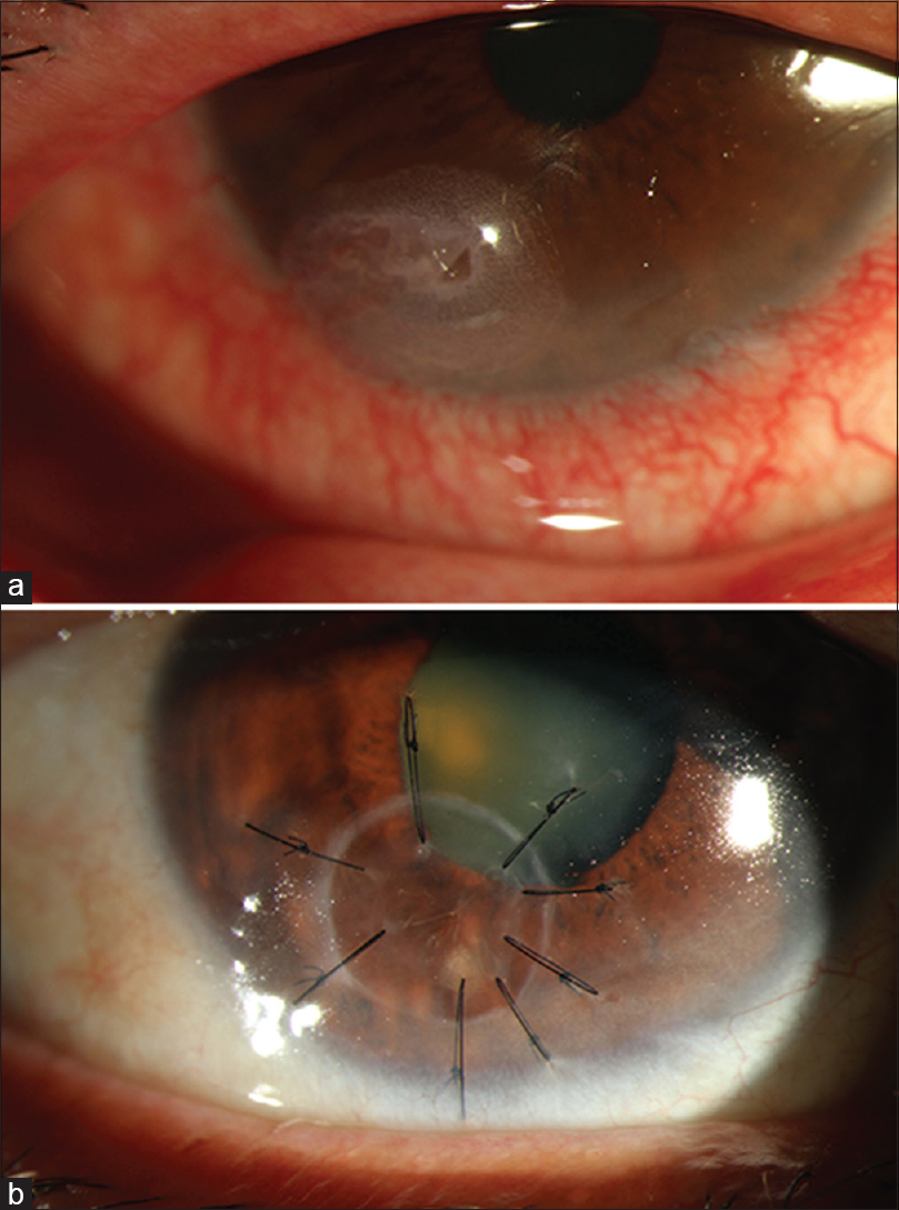 Figure 6: (a) Peripheral corneal perforation (b) Peripheral corneal perforation managed using a tectonic patch graft