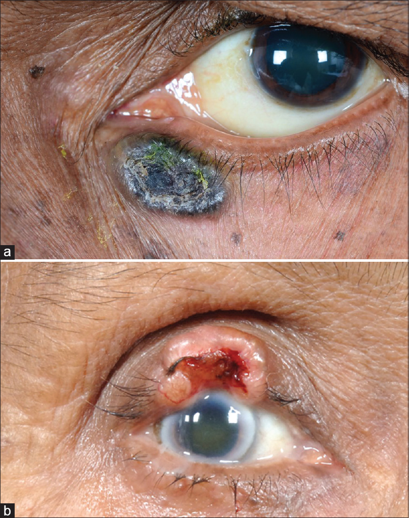Figure 2: Basal cell carcinoma manifesting as a chronic pigmented placoid mass in the lower eyelid with a surface crust. It does not generally involve the eyelid margin and is more commonly found in the  lower eyelid. (a); A noduloulcerative type of squamous cell carcinoma of the upper eyelid with skin, eyelid margin, and tarsal involvement (b)