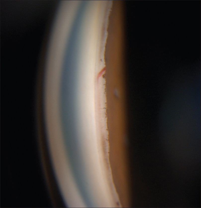 Figure 1: Gonioscopy of the right eye showing blood vessel crossing the scleral spur and ending in the trabecular meshwork